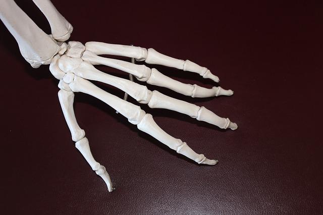 arthritis, arthritis in hands